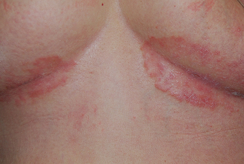 Contact today Dr Swapna Priya, best dermatologist in hyderabad for Best Inverse Psoriasis Treatment in Hyderabad