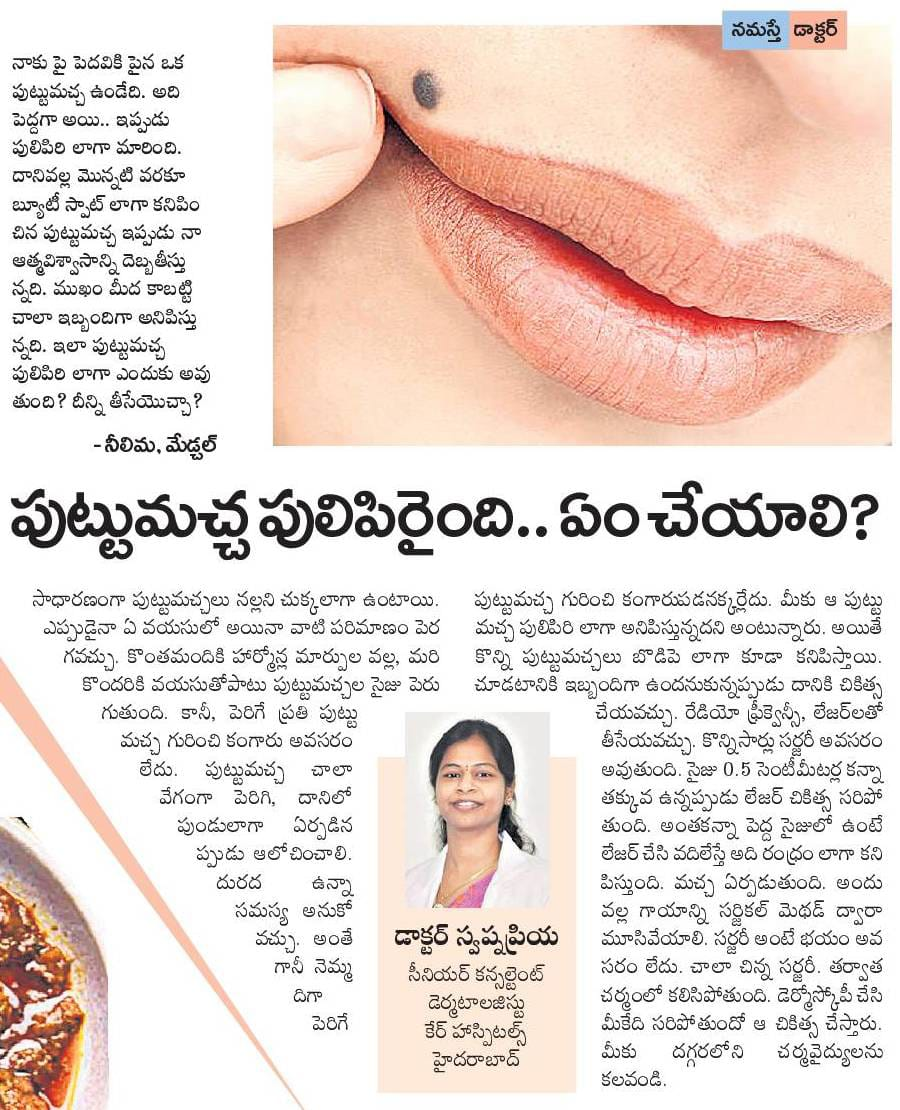 Best treatment for Warts by Dr Swapna Priya, Famous skin specialist in hyderabad