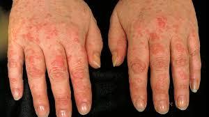Best Treatment for Chronic Urticaria by Dr Swapna Priya, One of the best Skin specialist near me