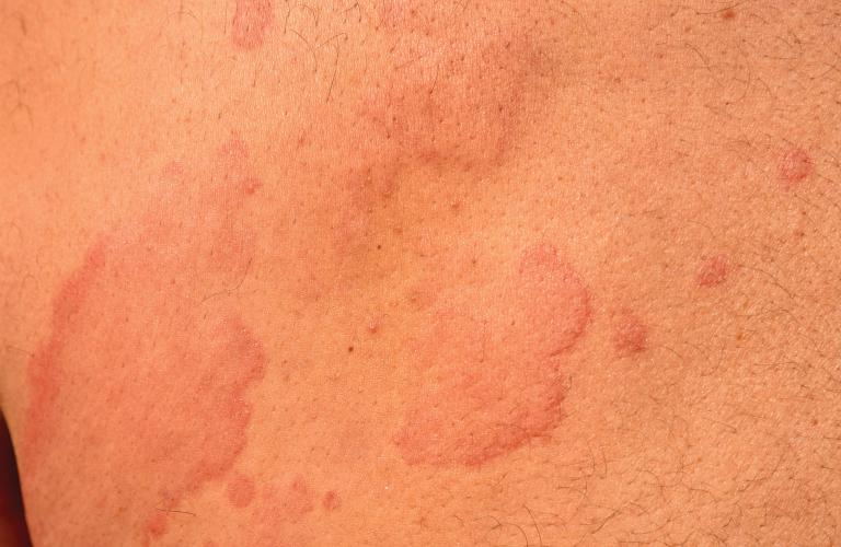 Get now Acute and Chronic Urticaria treatment by Dr Swapna Priya, one of the best Skin specialist in Hyderabad near me
