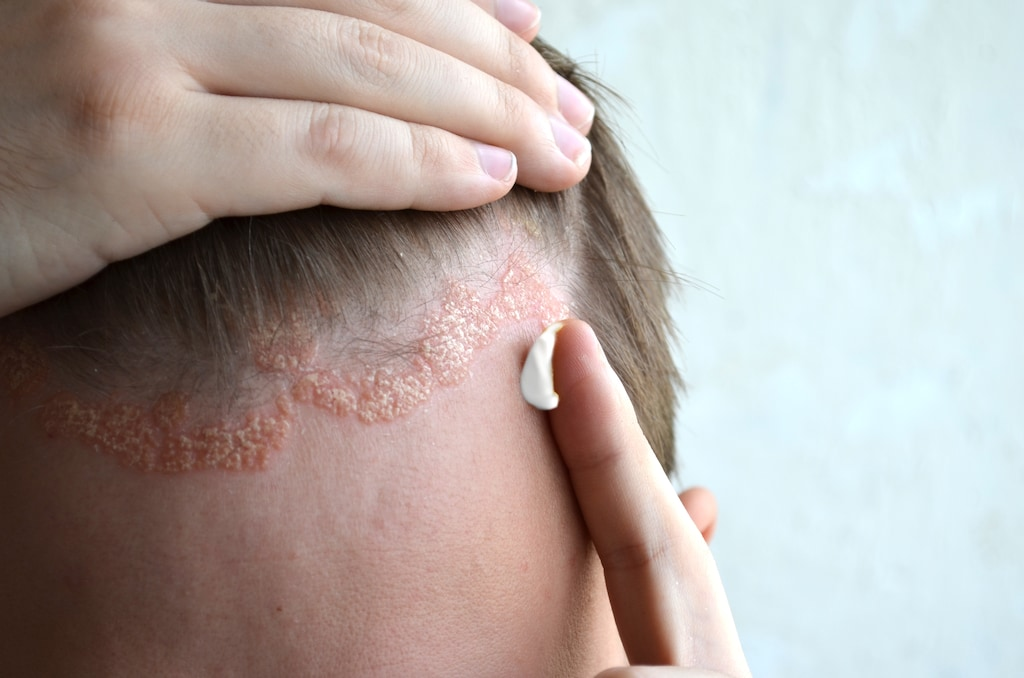 Get today Scalp Psoriasis Treatment in Hyderabad by Dr Swapna Priya at Cosmosure Clinic