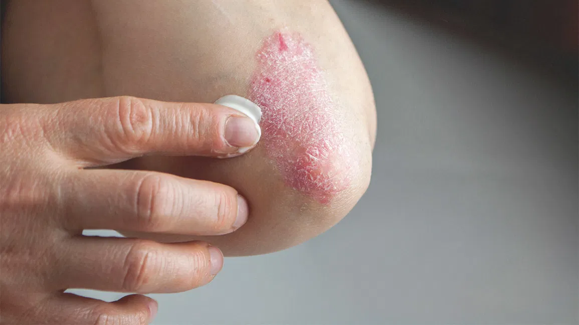 Best Psoriasis Treatment by Dr Swapna Priya, one of the Female Dermatologist Near me