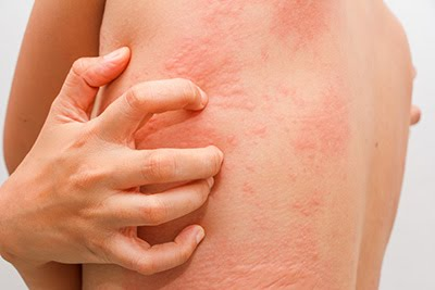 Get now Acute and Chronic Urticaria treatment by Dr Swapna Priya, one of the best Skin doctor in Hyderabad
