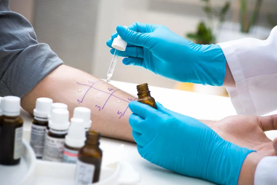 Best Diagnosis Clinic for chronic urticaria in Hyderabad, Best hospital for skin care near me