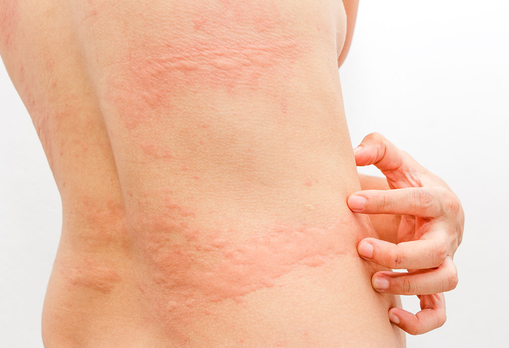 Best Urticaria specialist for pregnant women in Hyderabad, skincare doctors near me